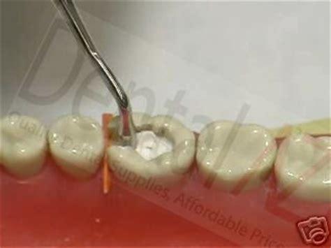 methods of filling teeth an exposition of practical methods classic reprint books ciment dentaire provisoire de remplissage pr 234 t 224