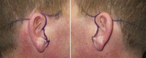 rhytidectomy incision male cosmetic surgery plastic surgery in kuala lumpur