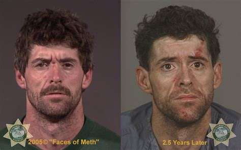 Detox From Meth Use by Of Addiction The Effects Of Meth