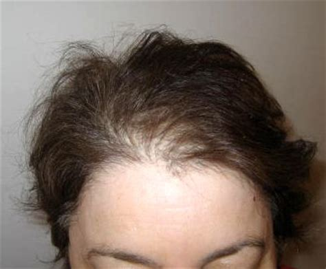 thining hair in front women with thinning hair in the front photos short