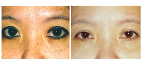 tattoo removal santa barbara permanent makeup in santa barbara saubhaya makeup