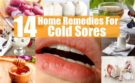 14 home remedies for cold sores diy health remedy