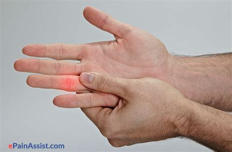 Bony Knobs On Finger Joints by Jammed Finger Treatment Exercises Recovery Symptoms Causes