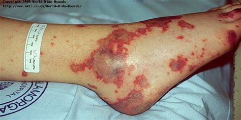 bed sore break in continuity of skin wound care ceu online continuing education course autos post