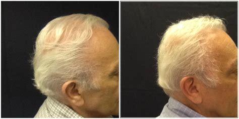 fue hair transplant 1920 grafts whtc www ufue michigan hair restoration neograft hair fue hair