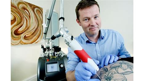 tattoo removal derby a day lasering away tattoos