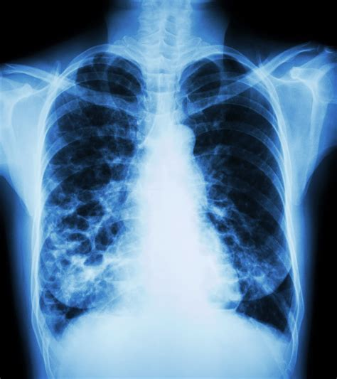 Cctv Lung Why Tuberculosis Persists Techonomy