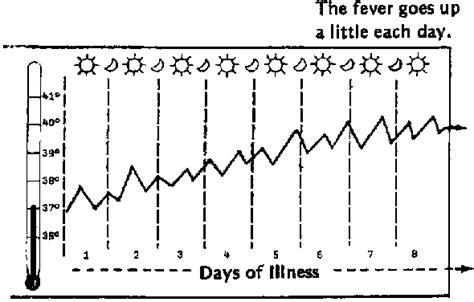 yellow fever pattern typhoid typical feverpattern