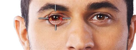 eye problems image gallery most common eye problems