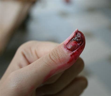 nail cracked cracked nail by krakenese on deviantart