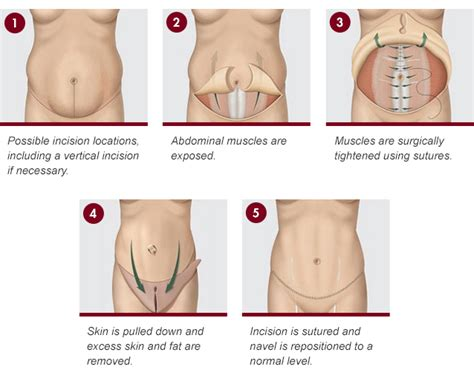 tummy tuck after c section canada tummy tuck deconti plastic surgery richmond virginia