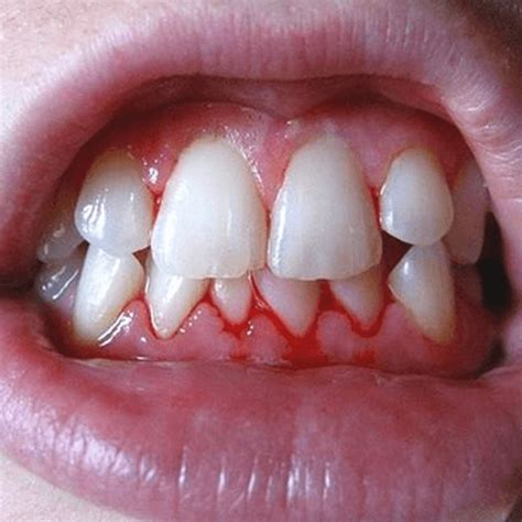 how to get rid of bleeding gums how to get rid of stuff