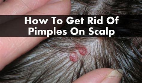 acne en el cuero cabelludo 10 remedios caseros para deshacerse de los granos en el