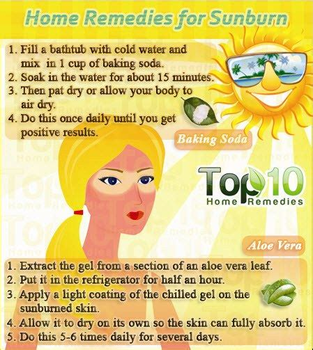 home remedies for sunburn top 10 home remedies