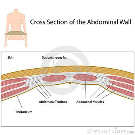 layers of the abdomen in cesarean section cross section of abdominal wall royalty free stock photos
