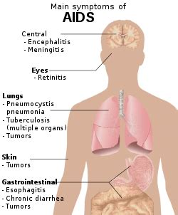 signs and symptoms of hiv/aids wikipedia