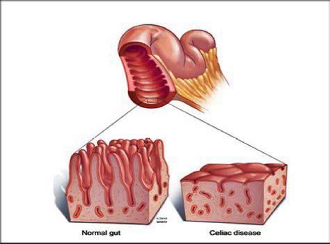journey the bowel a look at the coeliac celiac