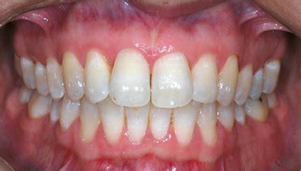 healthy gum color como recuperar tus encias forocoches