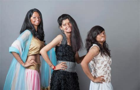 India Bans Fashion Tv Again by Indian Acid Victims Ban Together In Fashion Shoot Ny