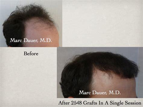 hair transplant orlando hair restoration orlando best hair transplant orlando hair restoration orlando best