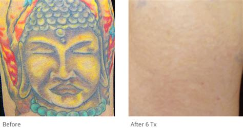 tattoo removal result astanza removal before after photos