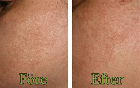 even better clinical spot corrector before and after even better clinical