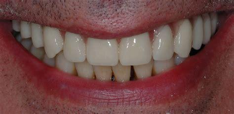 dentiera mobile costo dentiera fissa senza palato cura della pelle