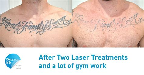 chest tattoo removal before after friends family forever 2nd treatment disappear ink