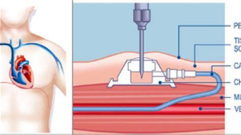 la chambre implantable glossaire m 233 dical chambre implantable port 224 cath