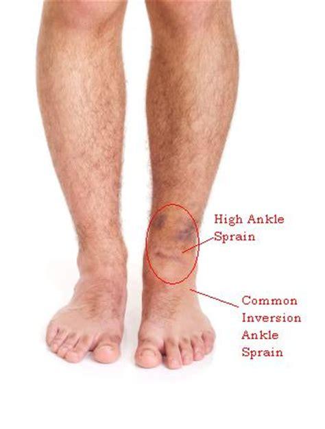 leg sprain related keywords suggestions for sprang leg