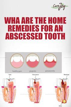 Abscessed Tooth Home Remedy by Dentists And You From On