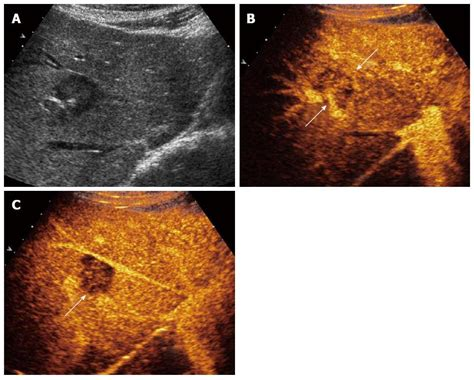 Contrast Enhanced Ultrasound And Liver Imaging Review Of The Literature by Contrast Enhanced Ultrasound Of Histologically Proven Hepatic Epithelioid Hemangioendothelioma