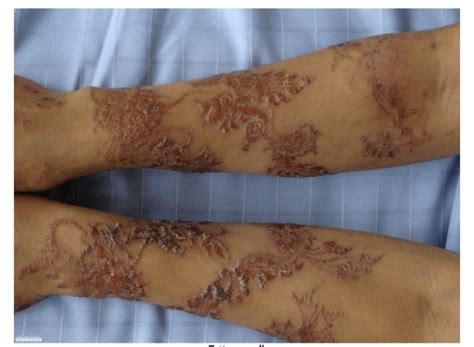 tattoo infection oozing 6 steps how to treat an infected tattoo take in