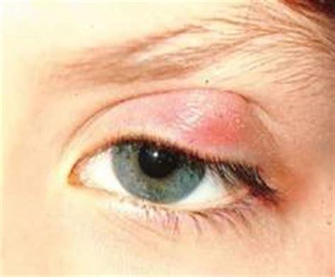 linfonodi interno coscia orzaiolo infiammazione palpebre infiammazione