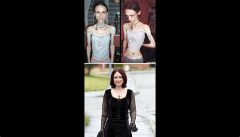 imagenes impactantes de bulimia conoce los 10 casos m 225 s impactantes de anorexia fotos