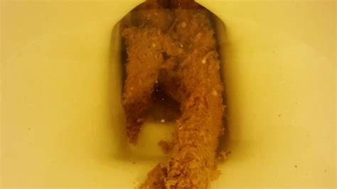 diarrhea yellow yellow seeds in stool candida yeast or tapeworm at parasites support forum alt