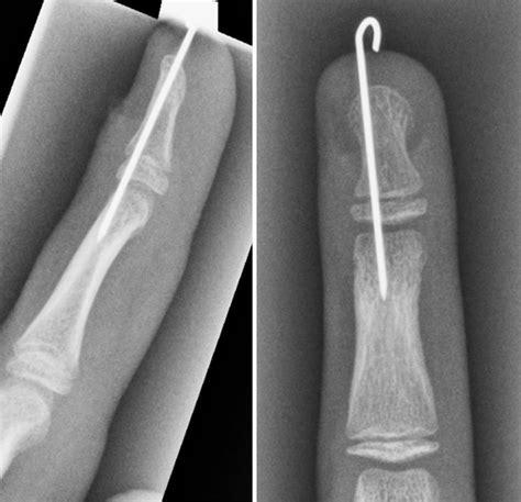 Nail Bed Injury A Footballer S Finger Injury The Bmj
