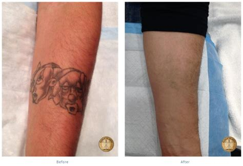laser removal fredericksburg surgical arts of