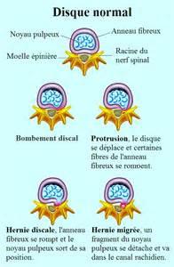 protrusion discale et bombement l4 l5 s1 ou cervicale