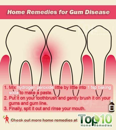 image gallery antibiotics gum disease
