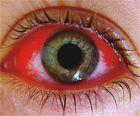 pink eye causes, symptoms, treatment, pictures | how do