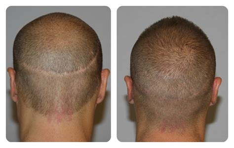 scalp micropigmentation in pakistan results my hair clinicmy hair clinic