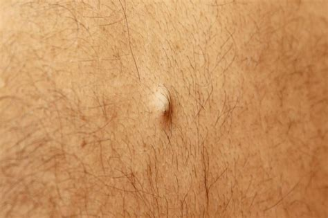 sebaceous cyst sebaceous cyst treatment causes and symptoms news today
