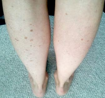 age spots on legs hide them this works