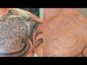 tattoo removal video 2017 cheap tattto removal technique archives chads tattoo tactic