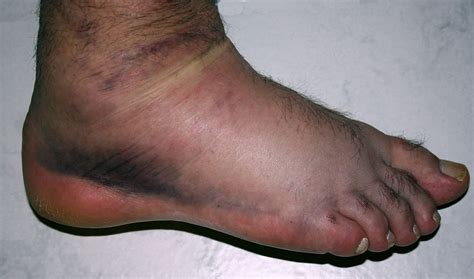 how to treat swollen feet after c section image gallery swell ankle