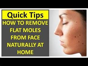 how to remove a mole at home how to remove flat moles from naturally at home