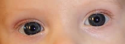 baby eye color baby s eye color in baby talk forum
