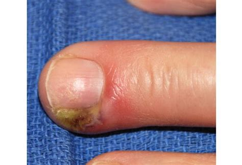Hangnail Images hangnail symptoms pictures causes and treatment
