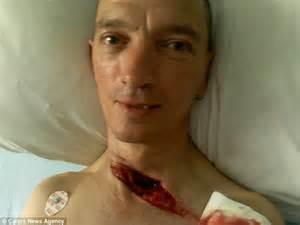 welder alan bailey cheats death after slicing neck open